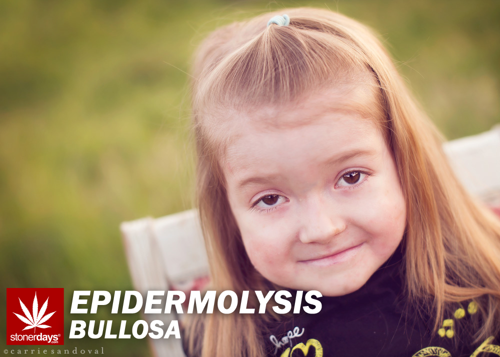 EPIDERMOLYSIS BULLOSA STONERDAYS