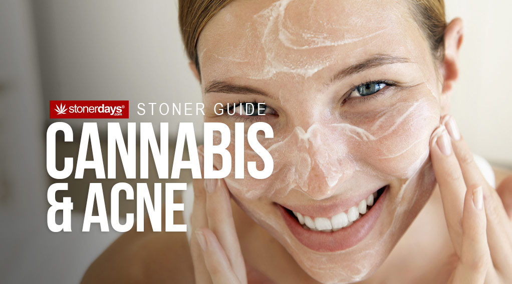 cannabis-acne